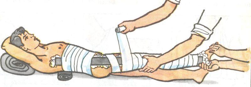 Как лечить перелом бедра