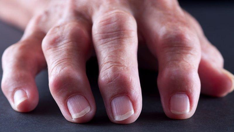 Что делать при болях в суставах рук