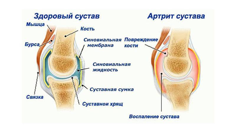 Как лечить артрит ног