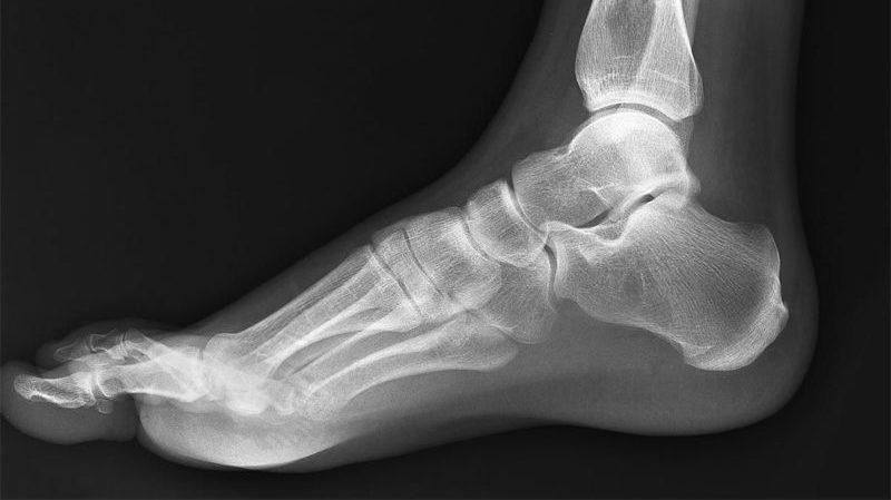 Как хирургически лечат плоскостопие