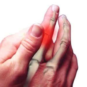 Что такое полиартрит и как его лечить