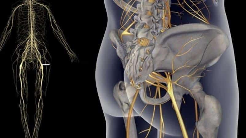 Что делать, если болит мышца на ноге в области бедра