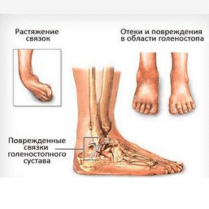 Болезни суставов стопы