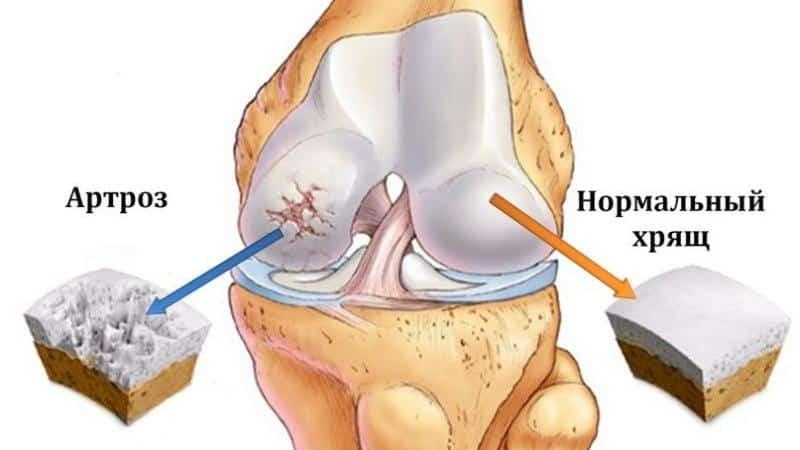 Какие БАДы можно принимать для суставов, связок и костей