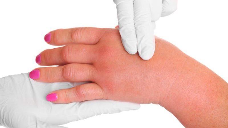 Что делать, когда болят суставы пальцев рук при беременности