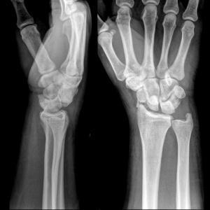 Как лечить перелом лучезапястного сустава