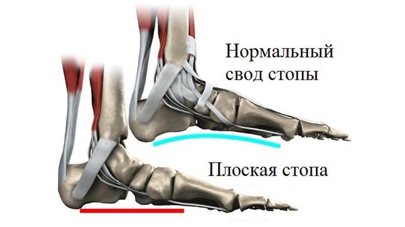Как лечить продольное плоскостопие