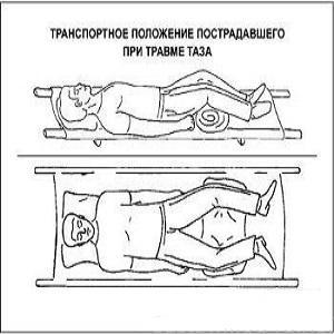 Как лечить перелом таза