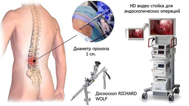 Как делают эндоскопическое удаление грыжи позвоночника