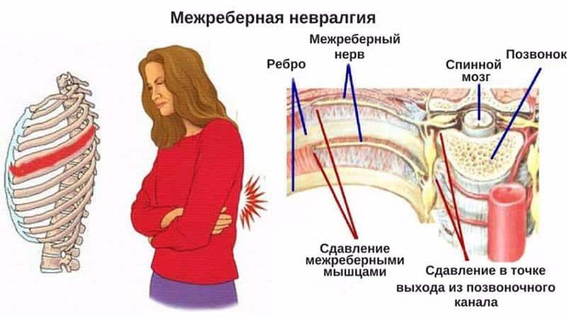Что такое миалгия и как её лечить