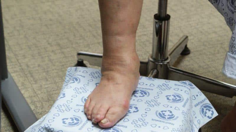 Что показывает рентген голеностопного сустава