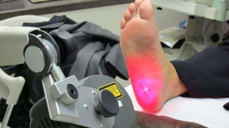 Как происходит лечение пяточной шпоры лазером