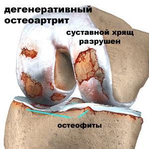 Что такое гонартроз коленного сустава и как его лечить