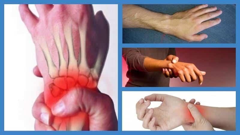 Как лечить стилоидит лучевой и локтевой костей
