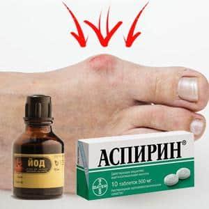 Как лечить косточки на ногах йодом и аспирином