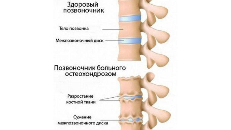 Симптомы и особенности лечения остеохондроза в зависимости от его степени