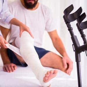 Как лечить перелом пяточной кости