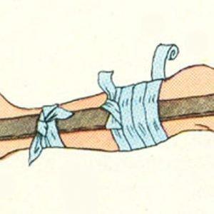 Как лечить перелом голени
