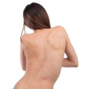 Как лечить сколиоз грудного отдела