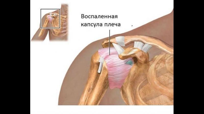 Изображение - Сустав между плечевой костью и лопаткой stroenie-plechevogo-sustava_3
