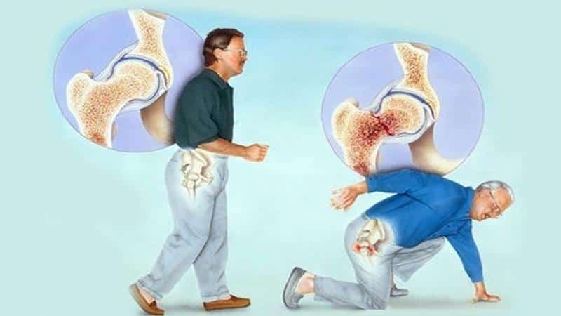 Как лечить вывих тазобедренного сустава