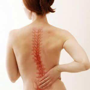 Какие есть болезни спины