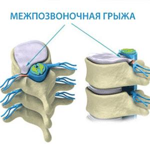 Как проходит операция по замене межпозвоночного диска