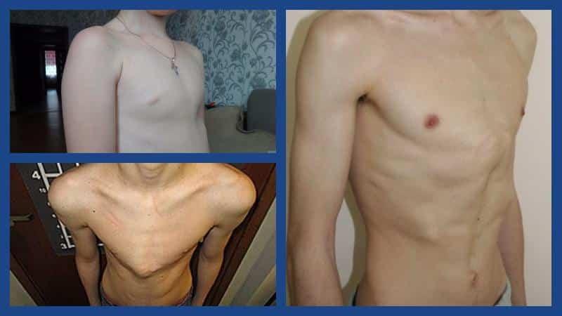 Как лечат килевидную деформацию грудной клетки