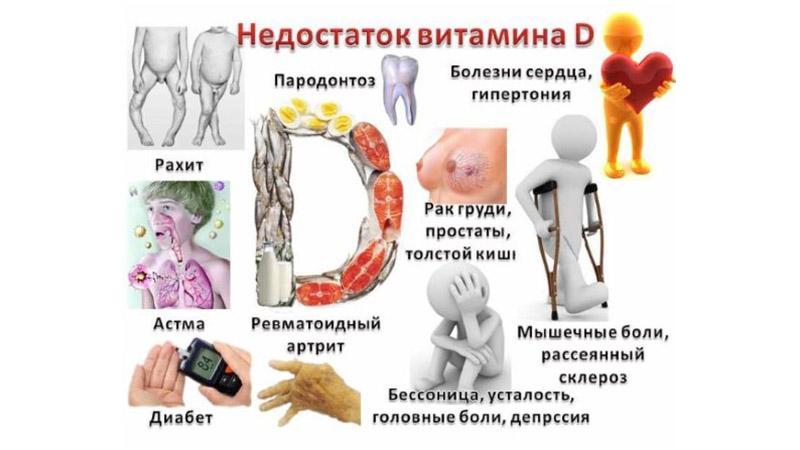 Как лечить недостаток витамина Д