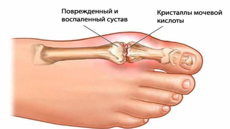 Как лечить отложение солей в стопе