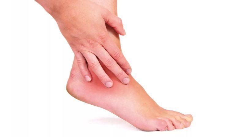 Как лечить гигрому стопы