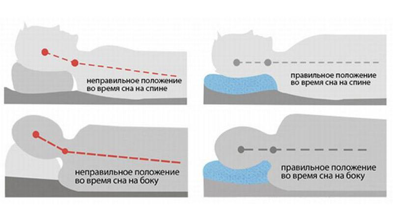 Как лечить дисторсию позвоночника