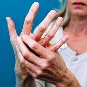 Как принимать Метипред при ревматоидном артрите