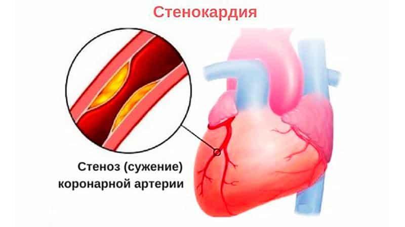 О чем говорит тяжесть в грудной клетке