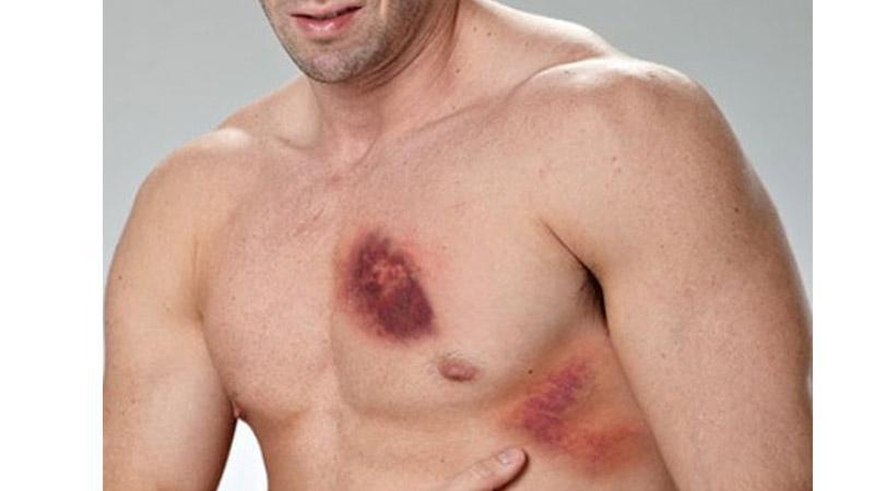 Что делать при ушибе грудной клетки