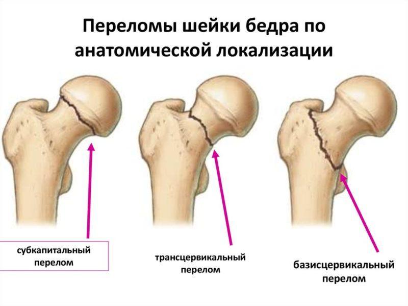 Как лечить перелом шейки бедра