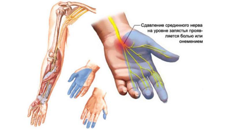 Как лечить защемление лучевого нерва в руке