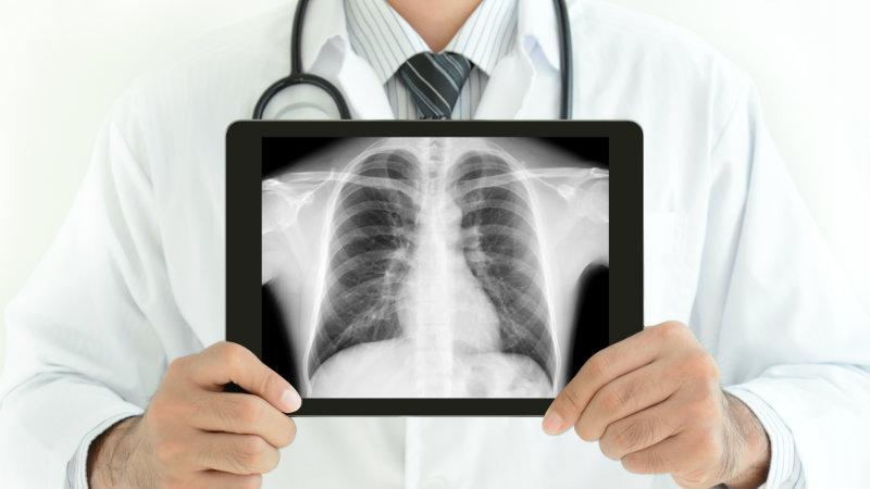 Что показывает рентген грудной клетки
