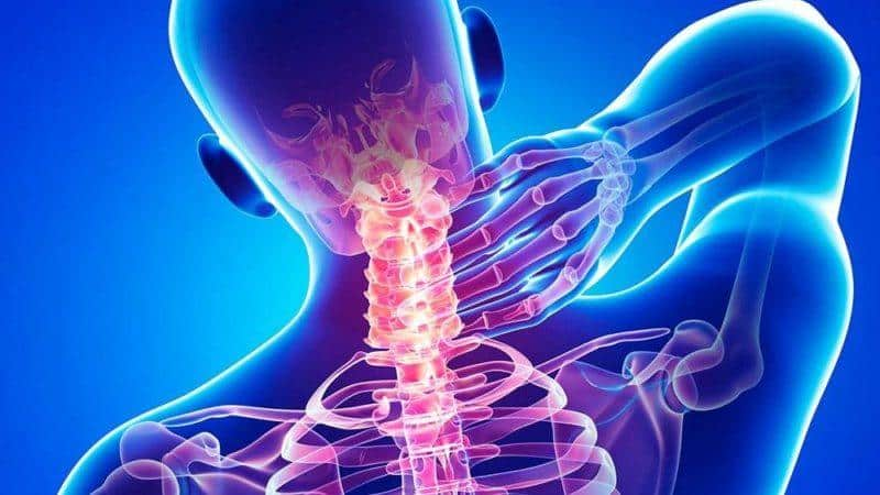 Как лечить остеофиты