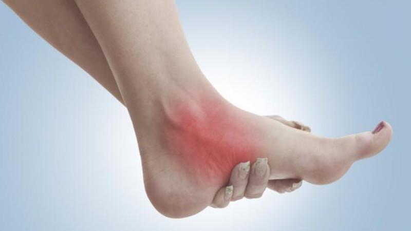 Как лечить тендинит стопы