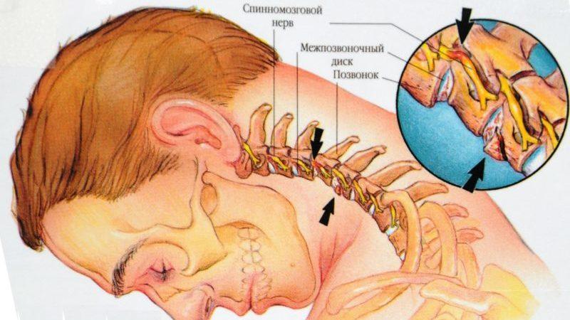 Какие болезни позвоночника существуют и их профилактика