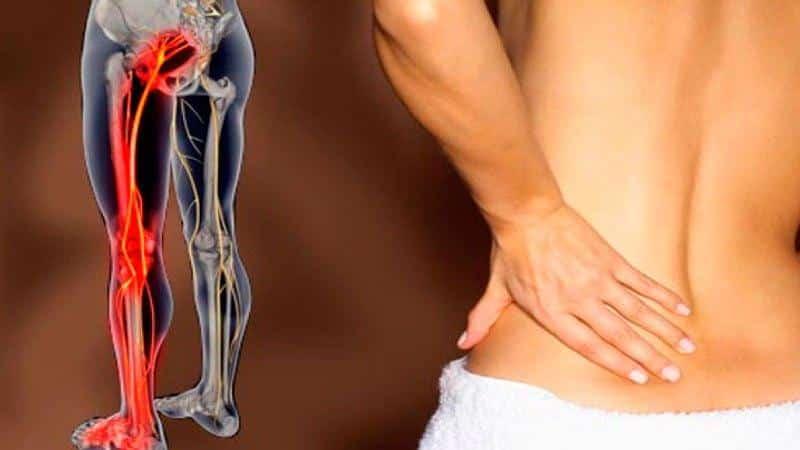 Какие обезболивающие применяют при защемлении седалищного нерва