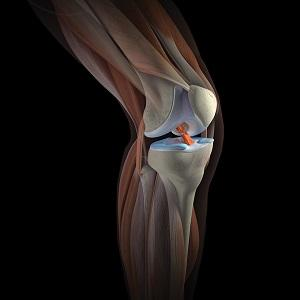 Что такое мышечная дистрофия Эрба-Рота и как ее лечить