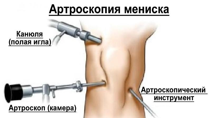 Операции на коленном суставе