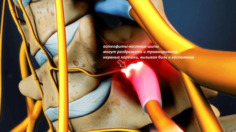 Как лечить гипертрофию желтых связок