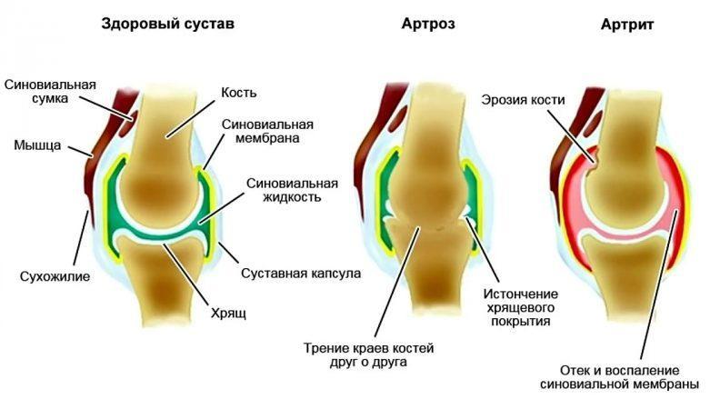 Что такое синовиальная жидкость