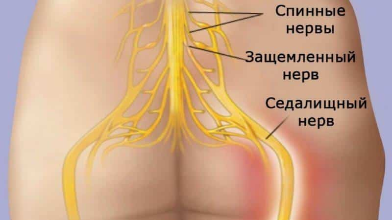 Как вылечить седалищный нерв народными средствами