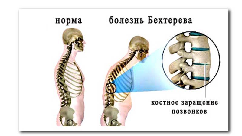 Что делать, болит спина в положении лежа