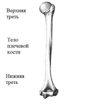Перелом надмыщелка плечевой кости