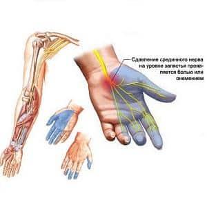 Что делать когда немеют мизинцы обеих рук